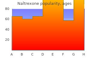 cheap 50 mg naltrexone amex